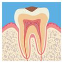 C1:虫歯レベル1