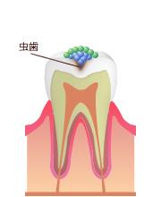 お子さまを虫歯から守るために大切なこと