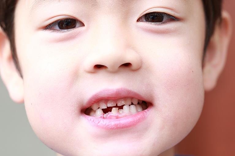 乳歯の虫歯を放置していると……