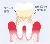 歯周病検査の重要性